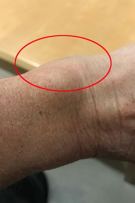 Wrist Lump